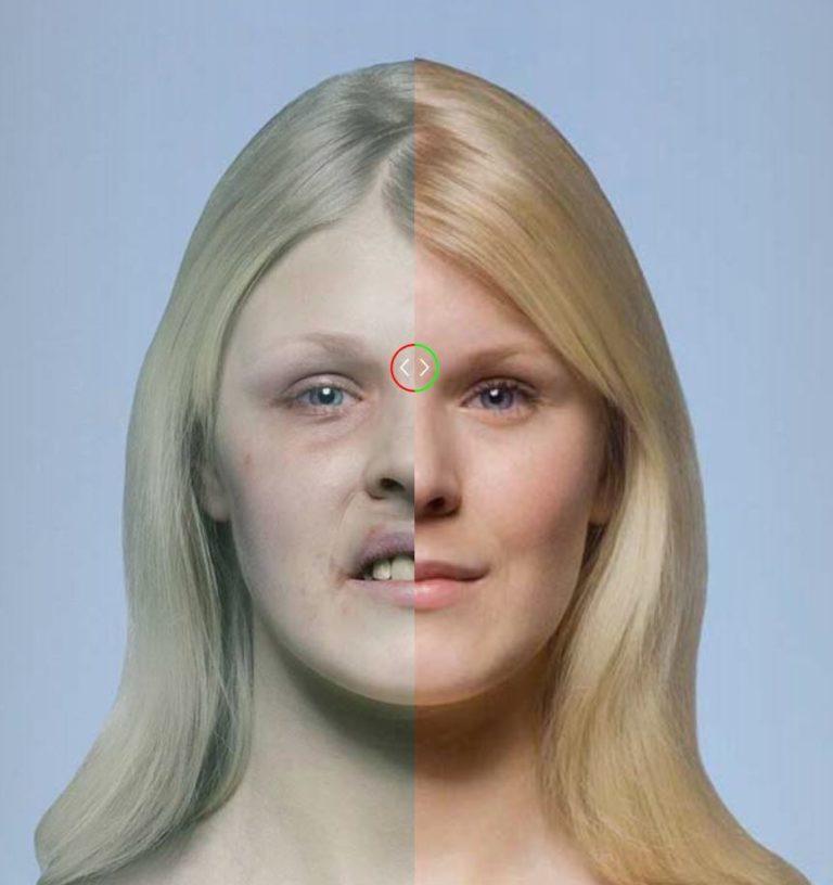 Effetti grafici shock: un sito mostra i danni da fumo